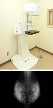 乳房撮影装置のイメージ